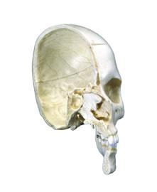 颅模型,骨半颅,4部分