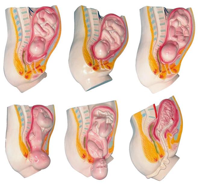 足月胎儿分娩过程模型(6部件)