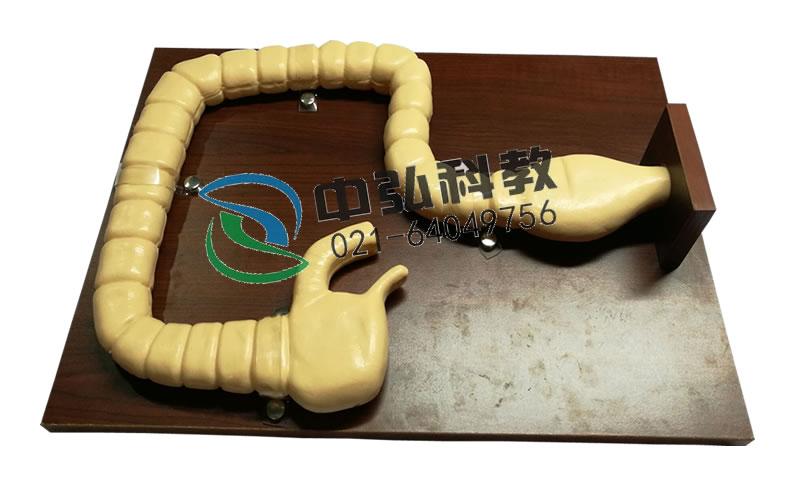 乙状结肠镜检查模型